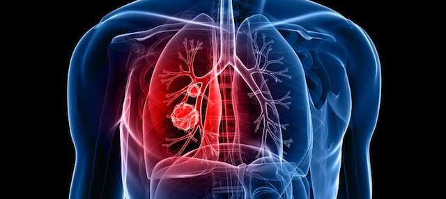 Lung Disease Responsible For 1 In 10 Deaths