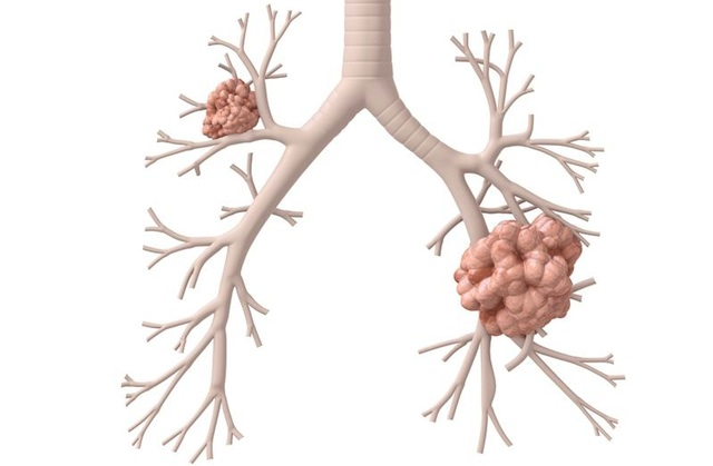 Lung Cancer Know The Symptoms, It's Not Just Smokers At Risk!